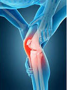 Knee on Trac For Knee Pain in Fort Worth TX